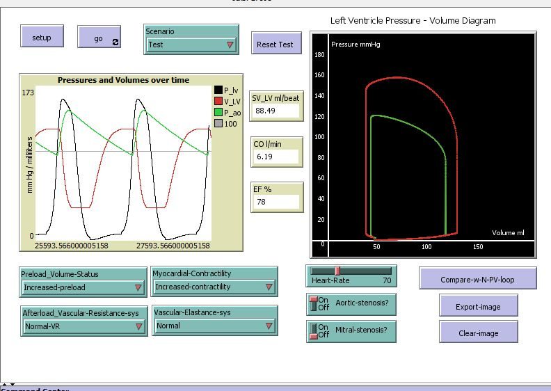 Cardiac_output-Simple_Model_01_01 preview image